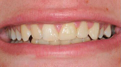 Dental crowns Grantham after