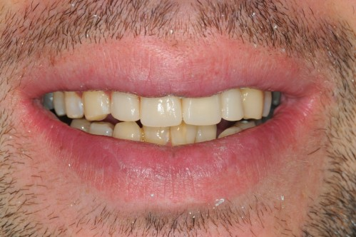 Dental crowns in Sleaford before and after