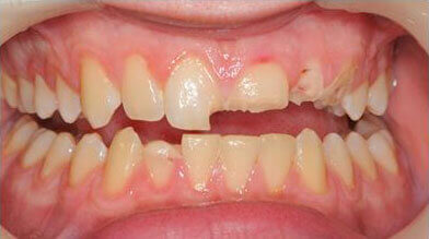 Dental crowns Grantham before
